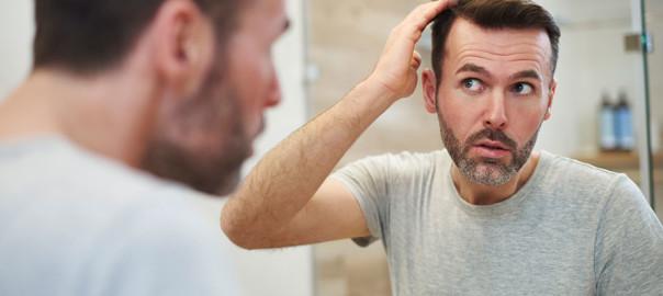 2020-spring-hair-loss
